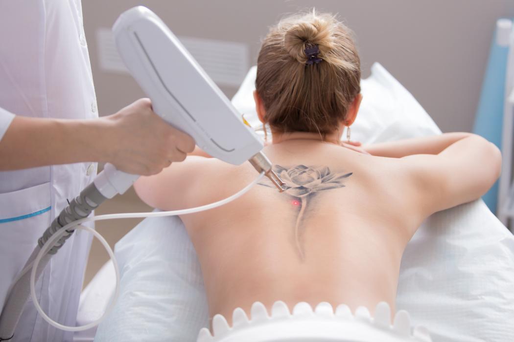 magazynkobiet.pl - usuwanie tatuazu 2 1050x700 - Niechciana pamiątka? Laserowe usuwanie tatuażu nie pozostawi po niej śladu
