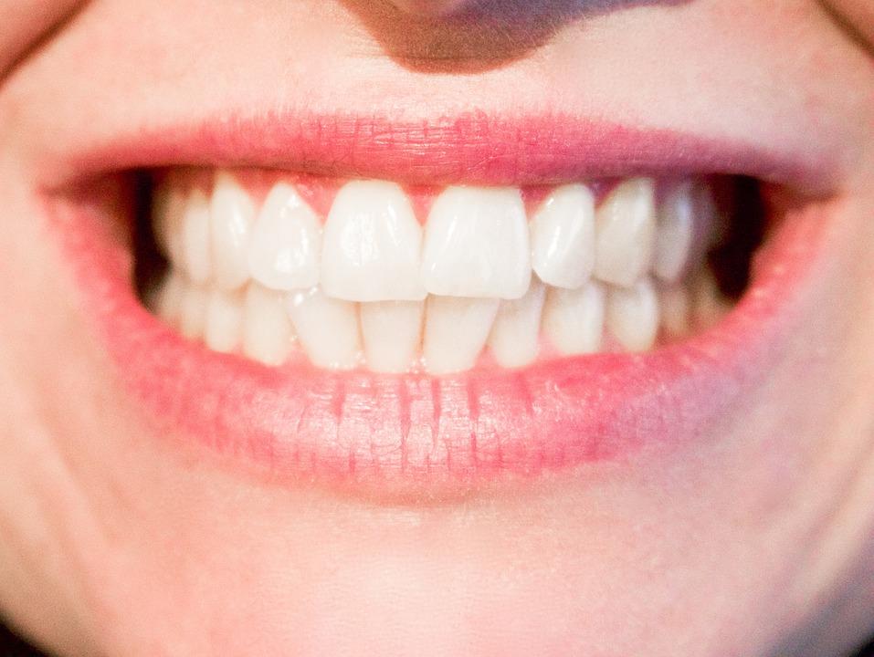 magazynkobiet.pl - teeth 1652976 960 720 - Aparat lingwalny – kto może go nosić?