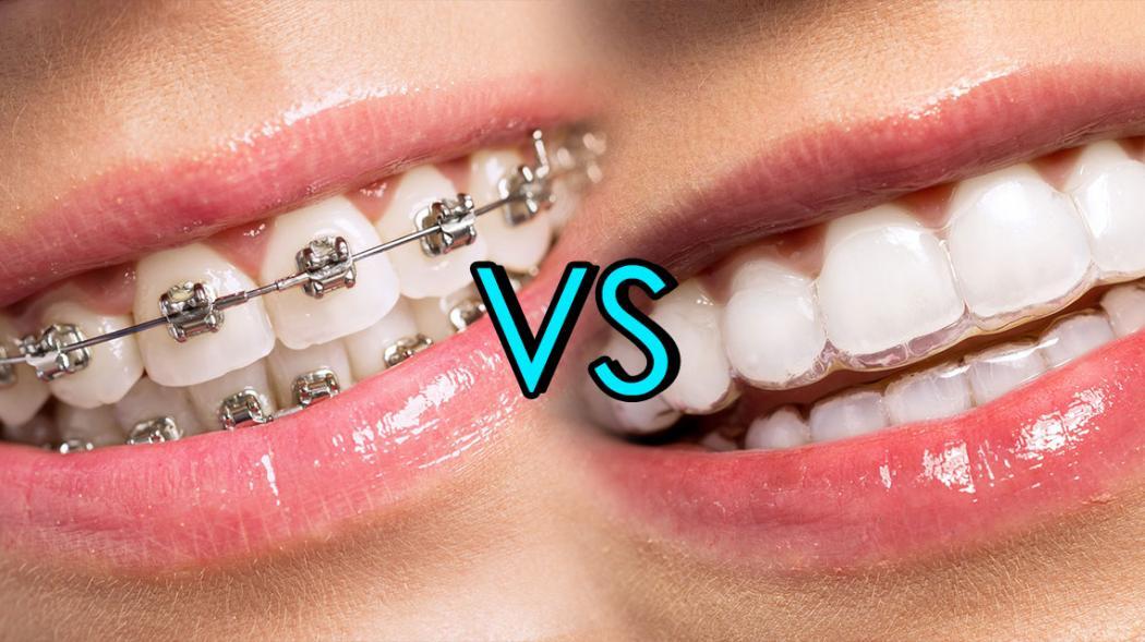 magazynkobiet.pl - metal bracers vs invisalign bracers straight teeth 1050x589 - Niewidoczny aparat ortodontyczny Invisalign