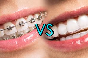Niewidoczny aparat ortodontyczny Invisalign