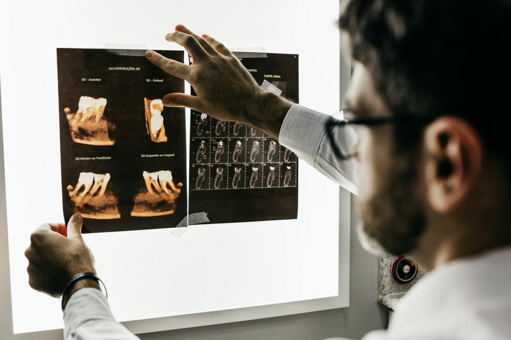 magazynkobiet.pl - photo 1588776814546 1ffcf47267a5 1050x700 - Kiedy zdecydować się na RTG punktowe zęba?