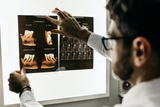 magazynkobiet.pl - photo 1588776814546 1ffcf47267a5 330x220 - Kiedy zdecydować się na RTG punktowe zęba?